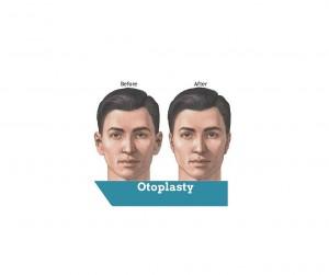 otoplasty