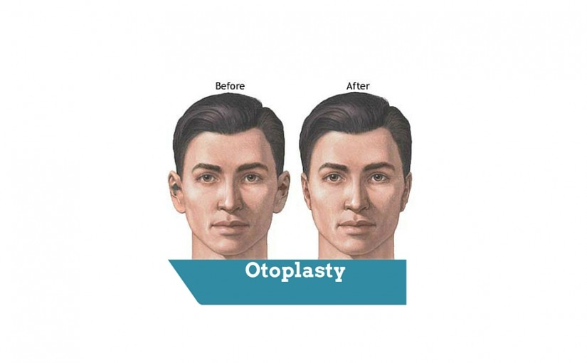 Is otoplasty in London a cheap cosmetic procedure
